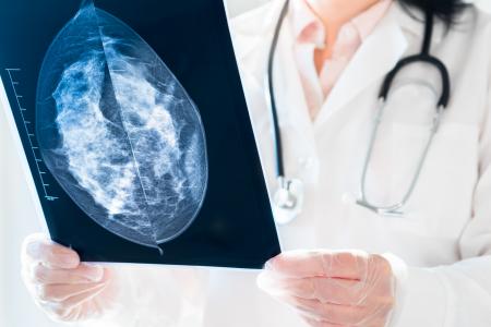 Taquari não tem lista de espera para o exame de mamografia